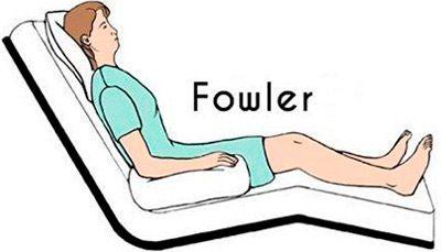 Posición de Fowler en cama articulada